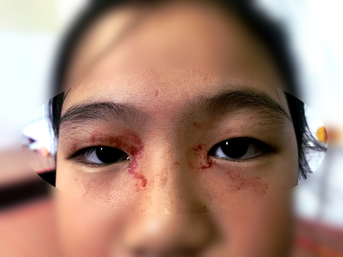DAK DOA, VIETNAM Doctors have been left battled by a child patient who sweats blood, believing she has the ultra-rare medical condition hematidrosis (Credit: Pen News) (Pen News ??25, ??15, ??10 online) (Contact editor@pennews.co.uk/07595759112)