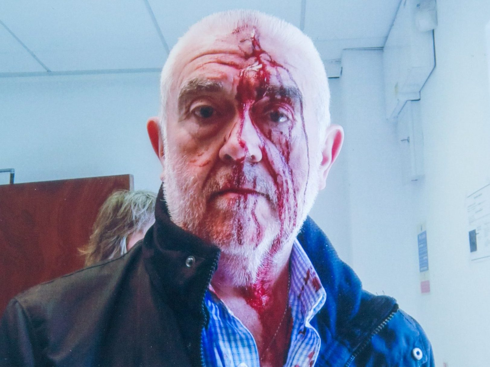 Online usage fee ?75 per picture. Print fee ?150. Pictured the injuries suffered by Keith Langham who was assaulted by security officer Chris Bryan from Gateshead, when Keith visited a Atos centre with his wife where she was taking part in a disability assessment.