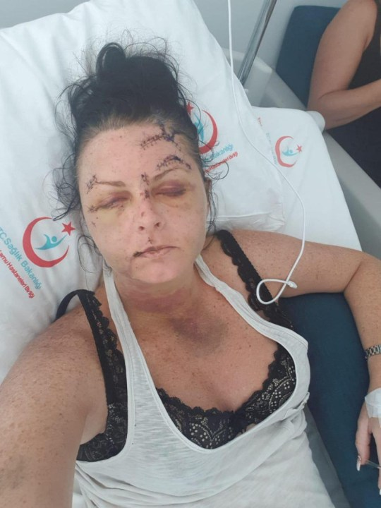 EMBARGOED UNTIL MIDNIGHT 17/09/2018 Picture: Emma Higginson Caption ***EMBARGOED UNTIL MIDNIGHT 17/09/2018*** Emma Higginson Caption This is the bloody scene after a holidaymaker was brutally attacked in her room while on holiday in Turkey. Credit controller Emma Higginson, 35, who has agreed to be named, was left with a fractured skull, eye socket and nose in the assault which left her ???????barely recognisable???????. Sheets were left soaked in blood and walls and floor tiles were also covered in blood following the horrific attack. Cops have arrested fellow Brit and car salesman Declan Marshall, 27, in connection with the attack after he is said to have lost it when Emma turned him down for sex. Speaking from her hospital bed in Marmaris, Emma told The Sun:???????I want everyone to see what this man has done to me. My mum and sister could barely recognise me when they saw me. ???????I????????m in so much pain. I????????m covered in bruises and I just want to go home but I can????????t because the doctors say my injuries are too bad to fly. ???????One of my teeth fell out this morning and I????????m going to need plastic surgery eventually to try and get my face back to normal. ???????I????????m going to be off work for ages as well because of this. The man who did this to me is an animal. A complete nutter and should be locked up for a long time.??????? The attack happened last week in Icmeler, a coastal resort in southern Turkey, popular with British holidaymakers on the last day of Emma????????s holiday where she has gone with a pal. She had met Marshall in a nightclub with another couple and they had offered him the sofa to sleep on after he told them he had no way of getting home. Emma said:???????I went off to my room and fell asleep but a few minutes later he was in my bed. He was trying to have sex with me and I said I wasn????????t interested. ???????I remember him saying I had no respect but I said I wasn????????t interested and had a boyfriend. Th