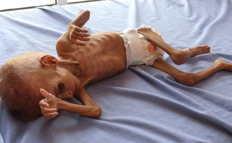 EDITORS NOTE: Graphic content / A Yemeni child suffering from malnutrition lies on a bed at a hospital in the northern district of Abs in the northwestern Hajjah province on September 19, 2018. - The three-year conflict between Yemen's Saudi-backed government and Huthi rebels linked to Iran has pushed the already impoverished country to the brink of famine, leaving many unable to afford food and water, with a total of 5.2 million children at risk of starvation according to the Britain-based NGO Save the Children. (Photo by Essa Ahmed / AFP)ESSA AHMED/AFP/Getty Images