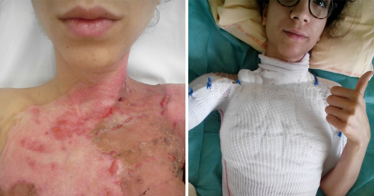 Student scarred for life after cooking pasta left her with third degree burns