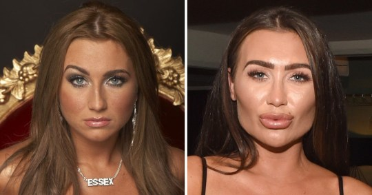 Lauren Goodger on her new face