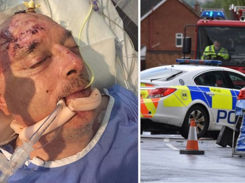 Niece of man left in coma after hit and run pleads for driver to come forward