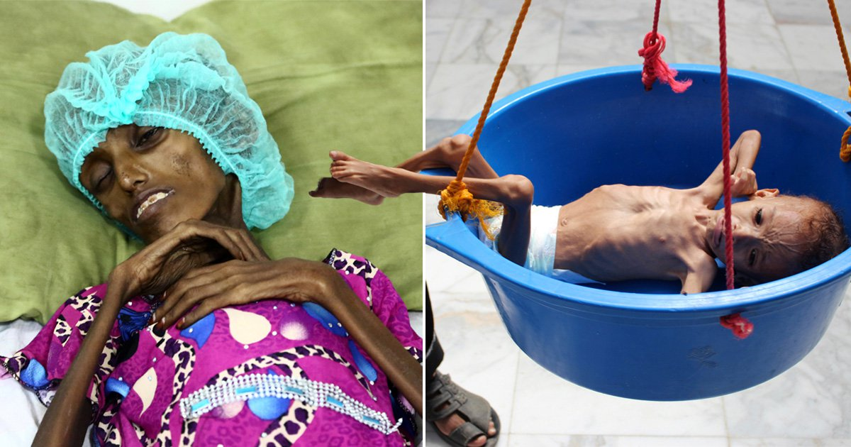 Yemen on verge of worst famine in 100 years as civil war rages on