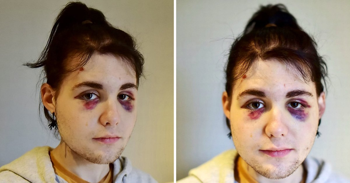 Teenager given two black eyes by homophobic thug in random bus attack