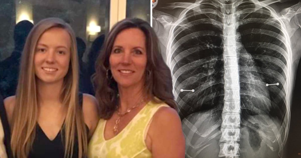 Mum finds out daughter has nipple piercings after X-ray