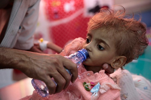 In this Thursday, Sept. 27, 2018 photo, a father gives water to his malnourished daughter at a feeding center in a hospital in Hodeida, Yemen. With US backing, the United Arab Emirates and its Yemeni allies have restarted their all-out assault on Yemen???s port city of Hodeida, aiming to wrest it from rebel hands. Victory here could be a turning point in the 3-year-old civil war, but it could also push the country into outright famine. Already, the fighting has been a catastrophe for civilians on the Red Sea coast. (AP Photo/Hani Mohammed)