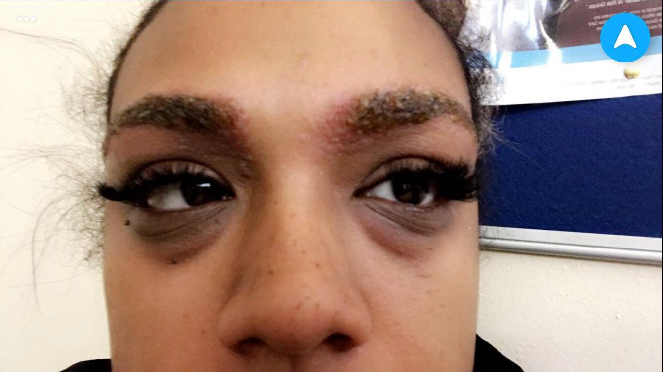 - Picture of Leanne Martin, 31, from Stretford. Picture show her eyebrows after the allergic reaction TRIANGLE NEWS 0203 176 5581 // contact@trianglenews.co.uk Pics A WOMAN who went for a simple eyebrow tint was horrified when an allergic reaction saw her brows become inflamed and then fall off. Leanne Martin has been left with stubble where her eyebrows once were after a severe reaction to the dye used. She had gone to a beauty salon to get her nails done, but decided to get her brows waxed while she was there.