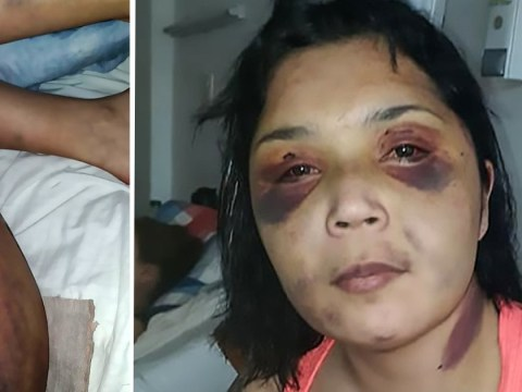 Pictures show woman's shocking injuries after 'boyfriend hit her with iron bar'
