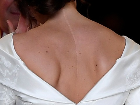 Princess Eugenie's wedding dress encourages 'scar positivity' – but not everyone can 'fix' their scoliosis