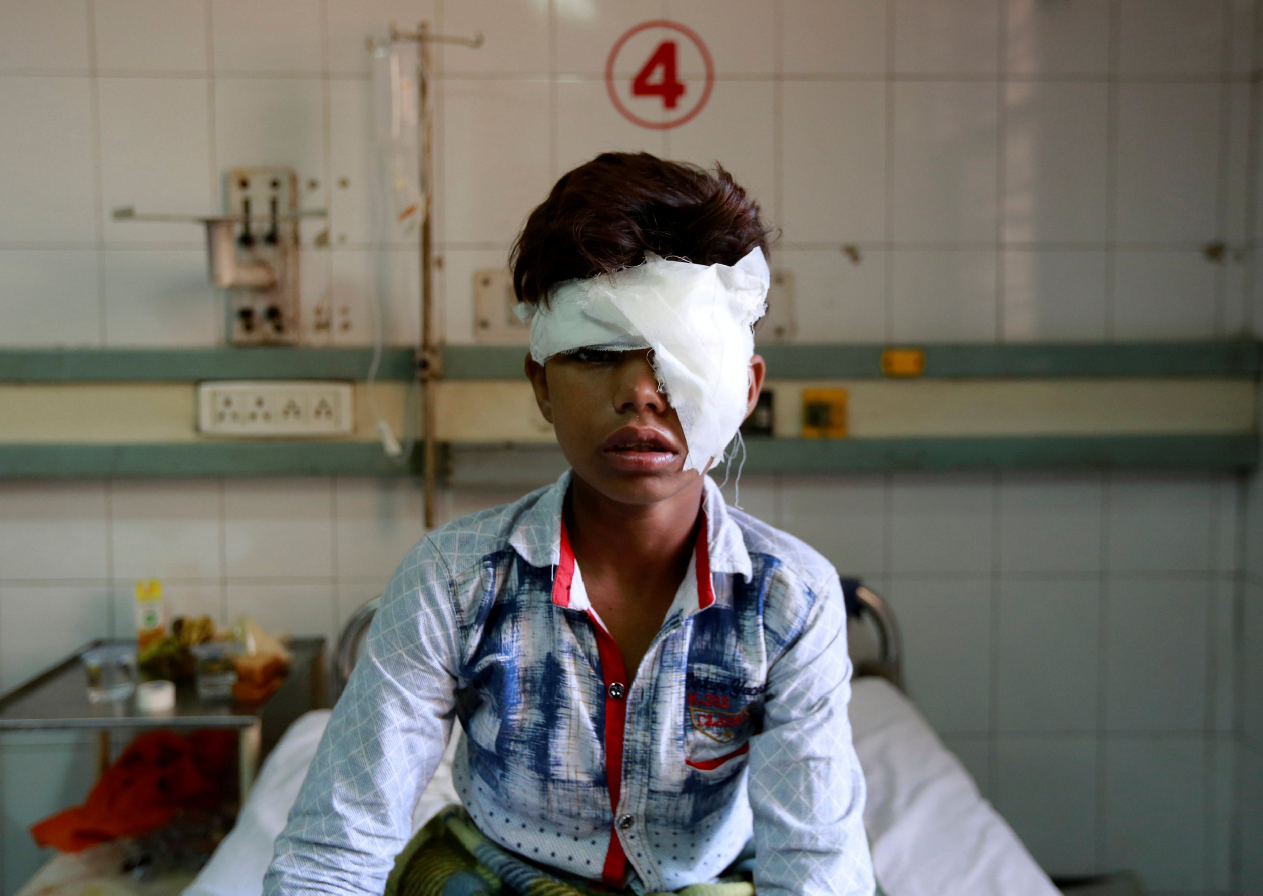 A boy who was was injured after a commuter train traveling at high speed ran through a crowd of people on the rail tracks on Friday, sits in a hospital bed in Amritsar, India, October 20, 2018. REUTERS/Adnan Abidi TPX IMAGES OF THE DAY