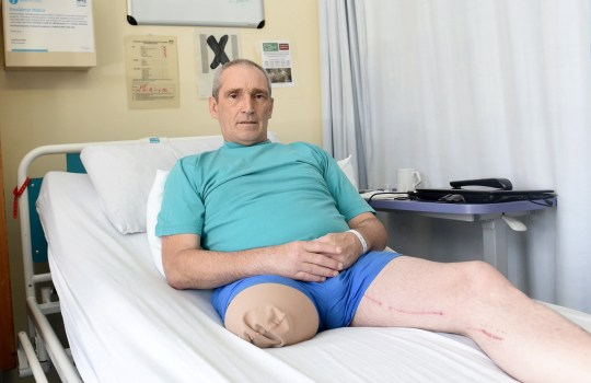 FROM JOHN JEFFAY AT CASCADE NEWS LTD 0161 660 8087 / 07771 957773 john@cascadenews.co.uk / www.cascadenews.co.uk Syndicated for Aberdeen Press and Journal with pix A MOTORCYCLIST who lost a leg in a horror crash was ?not ill enough? for DWP staff to visit him in hospital. Steve Cruickshank, 58, was told he?d need to attend an appointment in person to arrange payments to adapt his home in Auchnagatt, Aberdeenshire. He was also asked ?what he was doing to find a job? during his rehabilitation at Woodend Hospital, Aberdeen, from the crash in July that almost killed him.