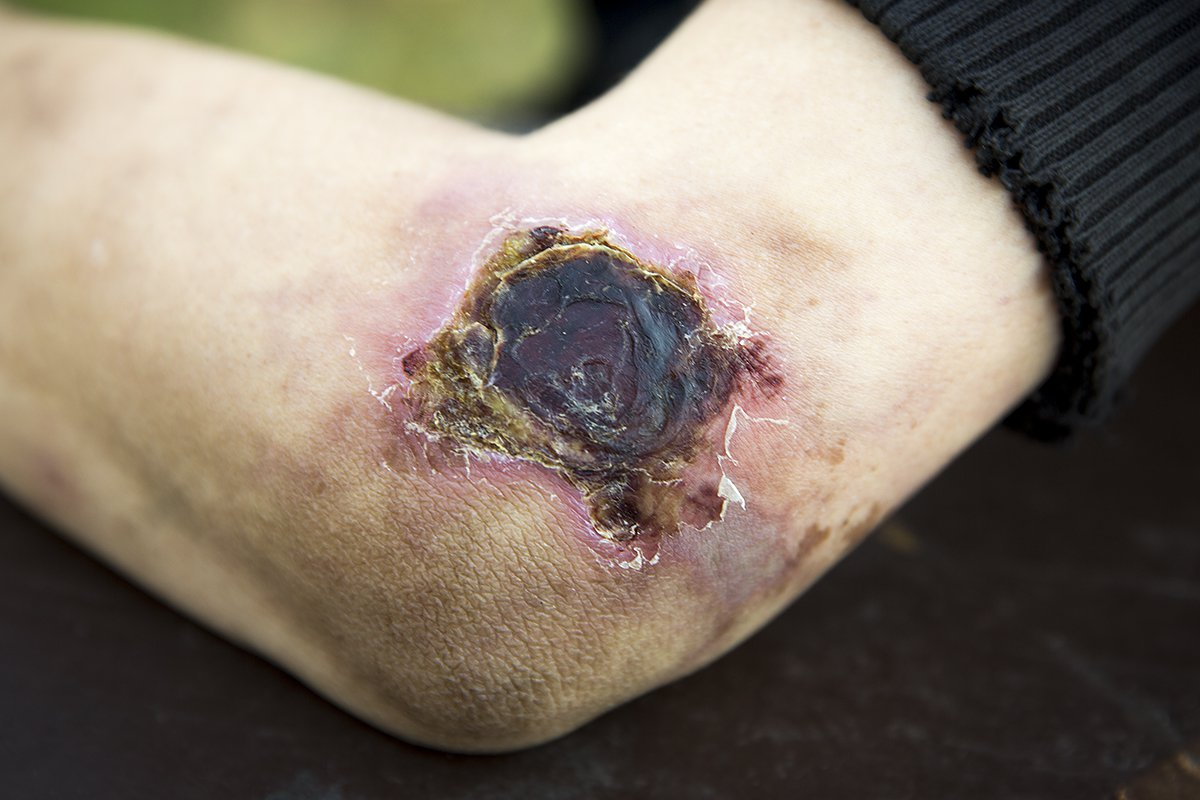 """Angie Neitzel, 29, shows one of her wounds from the drug """"Krokodil"""" in Lockport, Ill., on Monday, October 14, 2013. (Andrew A. Nelles for MailOnline.com)"""