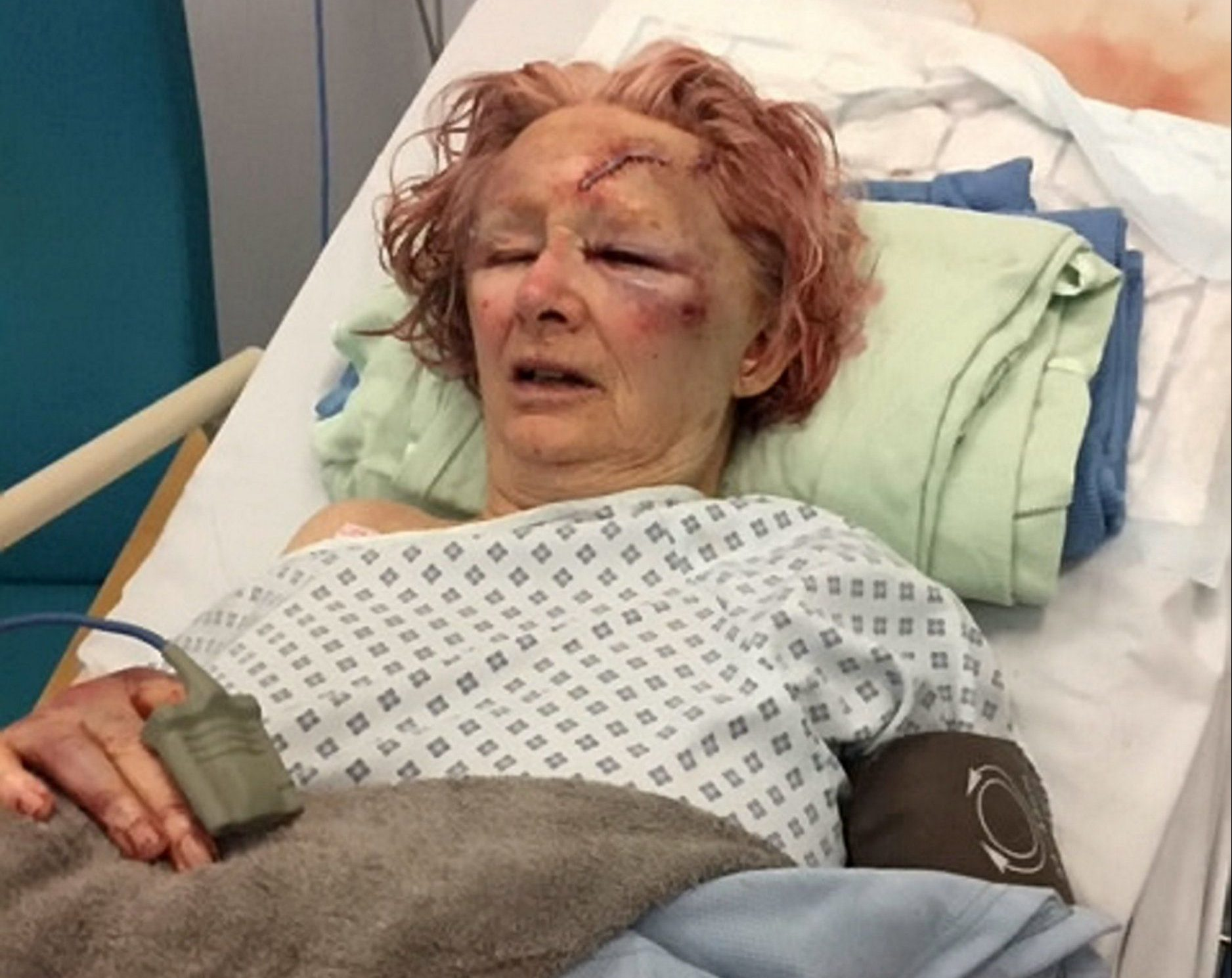 Elderly women beaten around the head with a torch by her partner