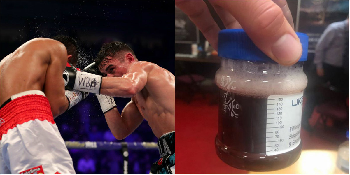 Anthony Crolla posts grim snap of urine sample after win over Daud Yordan