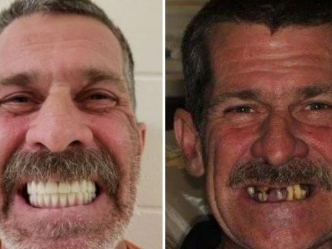 'Fraudster' shows off $40,000 new teeth he 'stole dementia sufferer's identity to buy'