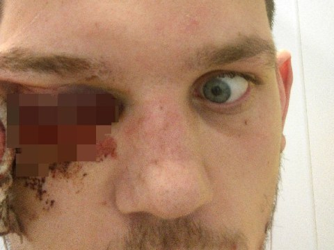 'I lost my eye to a firework – don't let the same happen to you this bonfire night'