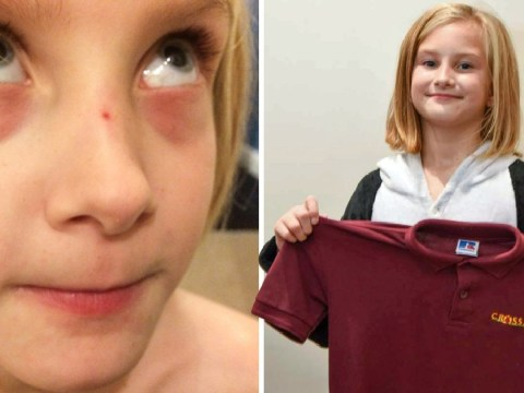 Nine-year-old has to wear onesies to school after becoming allergic to uniform