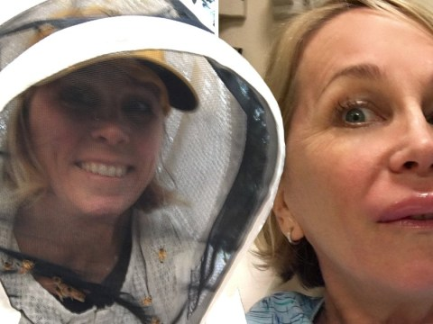 Woman who injected venom to cure her bee sting allergy now works as a beekeeper