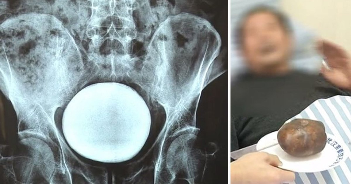 Bladder stone the size of a melon pulled out of man's stomach