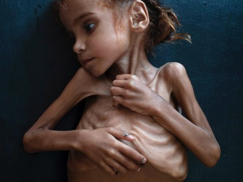 Little girl who became face of Yemen hunger crisis has died