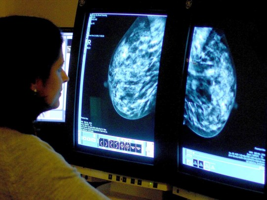 "File photo dated 15/06/06 of a consultant analyzing a mammogram. A study has found that women who are ""larks"" and at their best early in the morning are less likely to develop breast cancer than their night-owl sisters. PRESS ASSOCIATION Photo. Issue date: Tuesday November 6, 2018. The researchers who compared data on hundreds of thousands of women found that those with an in-built morning preference were 40%-48% less at risk of breast cancer. See PA story HEALTH Larks. Photo credit should read: Rui Vieira/PA Wire"