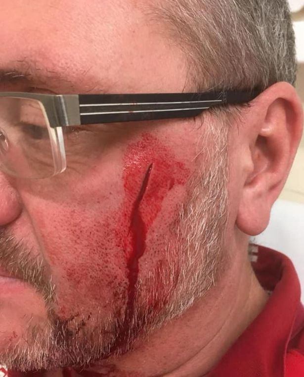 A dog-walker has been scarred for life after a cyclist slashed his face as he rode past. Craig Fisher, 48, was targeted as he walked his two dogs along a footpath near Stonebow Washlands on the outskirts of Loughborough on Sunday morning.