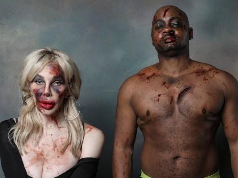 Shocking photos show the brutal abuse and violence transgender people face
