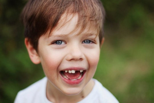 Sugar to blame for 45,000 procedures to remove children's teeth last year