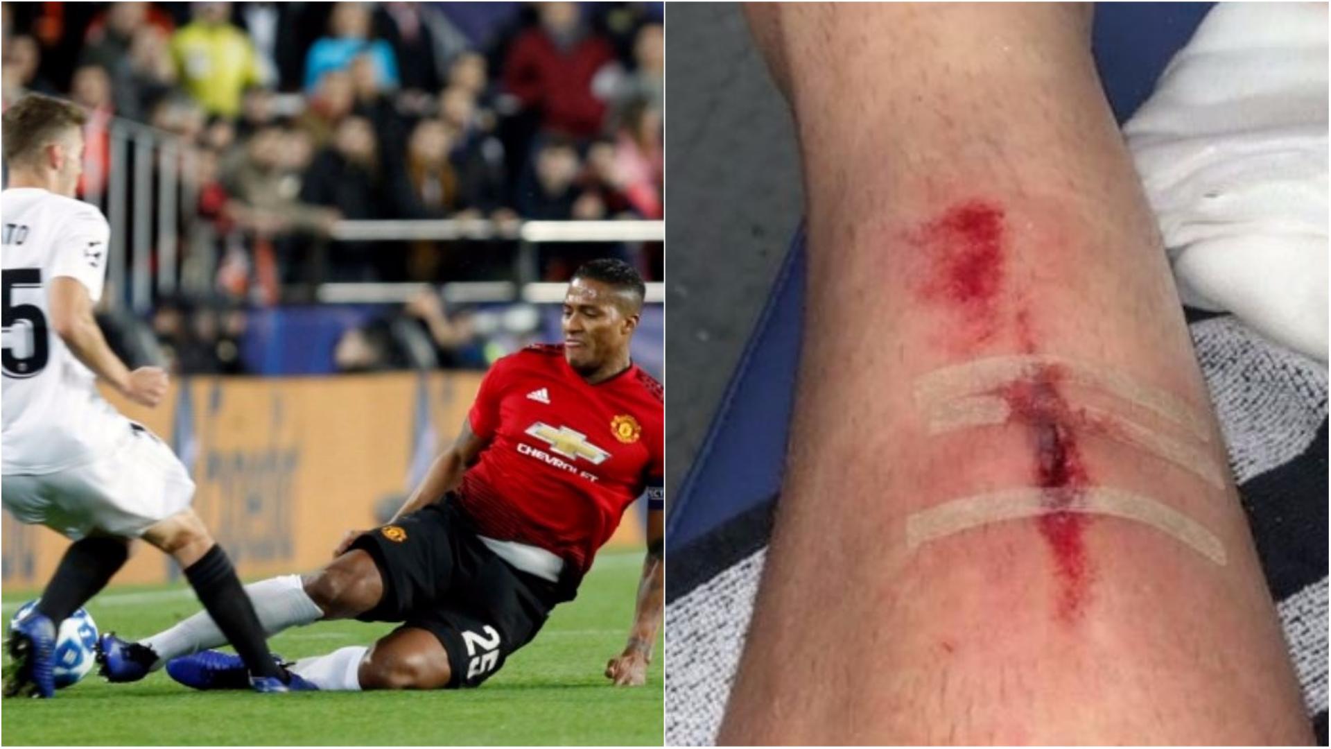 Toni Lato reveals nasty injury from Antonio Valencia's horror tackle in Manchester United's defeat to Valencia