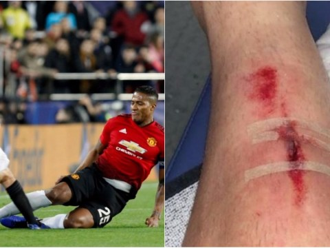 Toni Lato reveals nasty injury from Antonio Valencia's horror tackle in Manchester United's defeat to Valencia