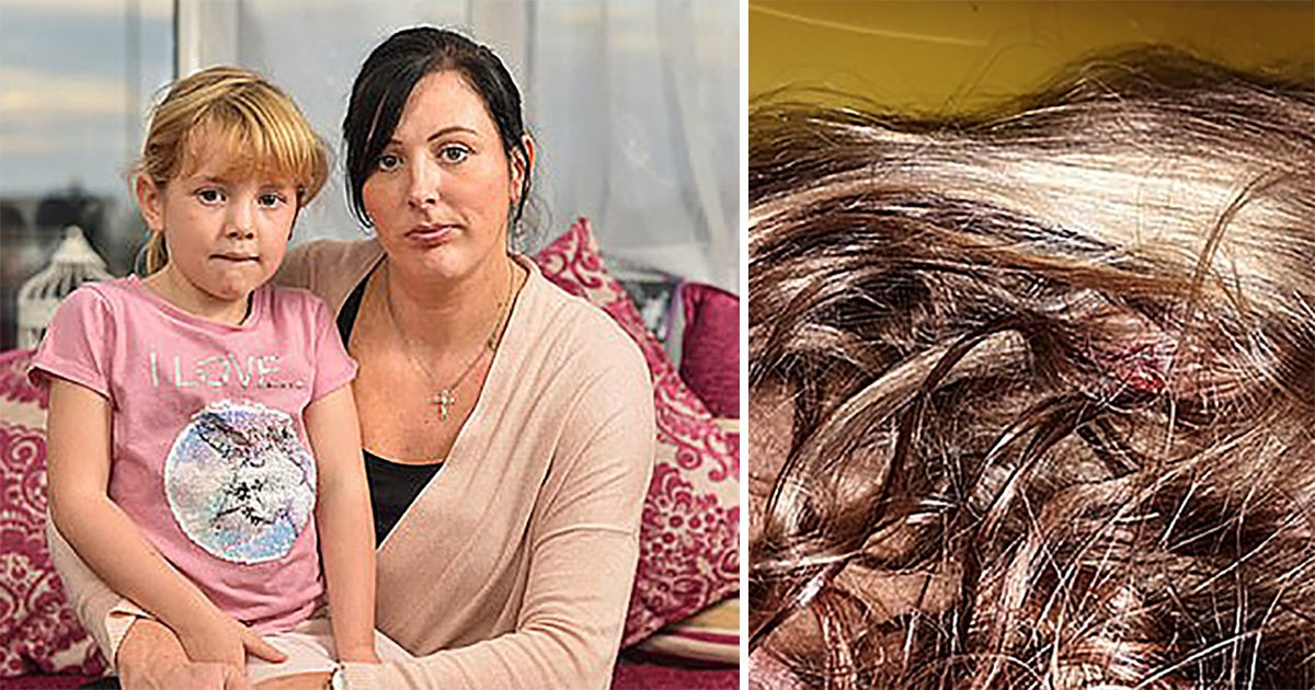 Girl, 5, 'forced to sit on her own on Ryanair flight after suffering head injury'