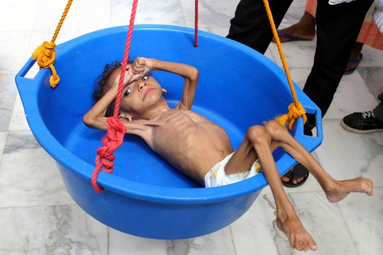 TOPSHOT - A Yemeni child suffering from malnutrition is weighed at a hospital in the northern district of Abs, in Yemen's Hajjah province on August 18, 2018. (Photo by ESSA AHMED / AFP) (Photo credit should read ESSA AHMED/AFP/Getty Images)