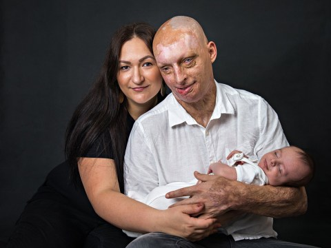 Acid attack victim blinded by ex finds love again with his carer