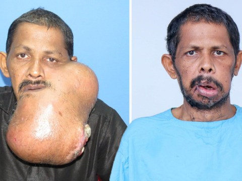 Enormous tumour removed from man's face in 12-hour facelift