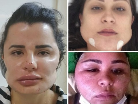 Plastic surgeon sued by 40 patients for leaving them looking like this