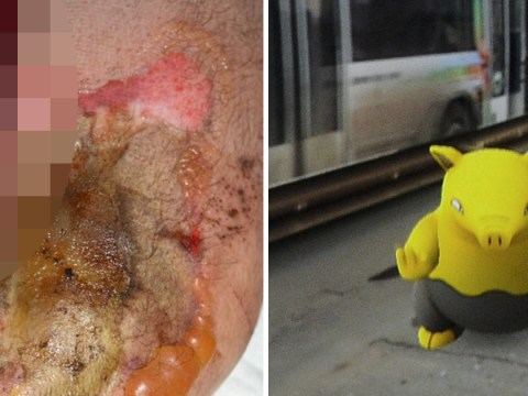 Gamer had to have leg amputated after falling on railway track looking for Pokémon