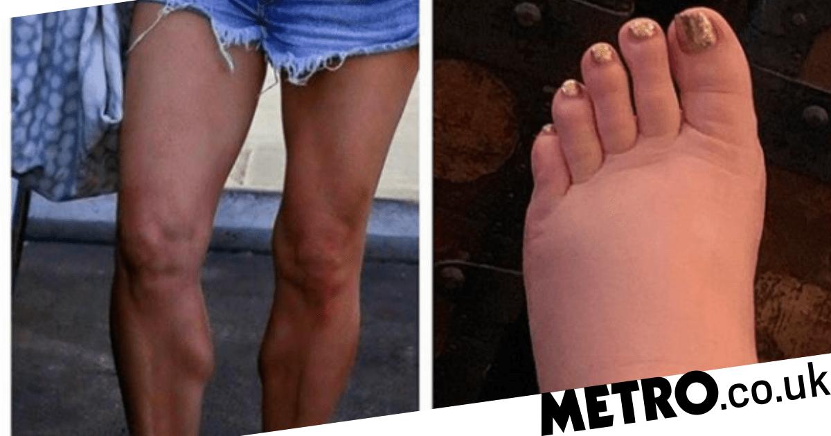 Swimsuit Shirley MacLaine naked (84 photo) Paparazzi, 2015, legs