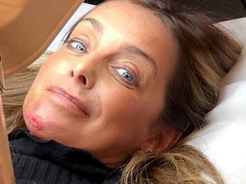 'It breaks my heart': Louise Redknapp reveals painful injuries as she's forced to pull out of 9 To 5