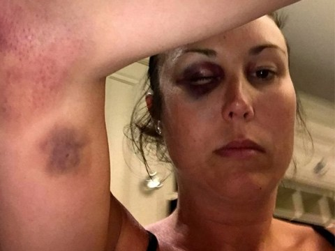 Mum describes being 'stamped on' and 'dragged to spitting chip pan' by violent husband who walked free