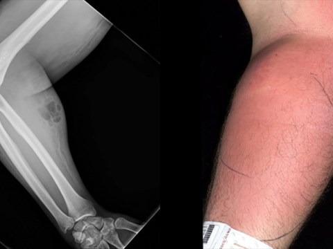 Man injects his own semen into his arm for 18 months 'to treat back pain'