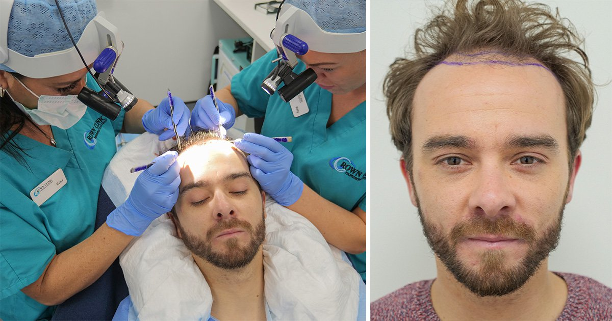 Coronation Street star Jack P Shepherd has hair transplant after going bald from stress