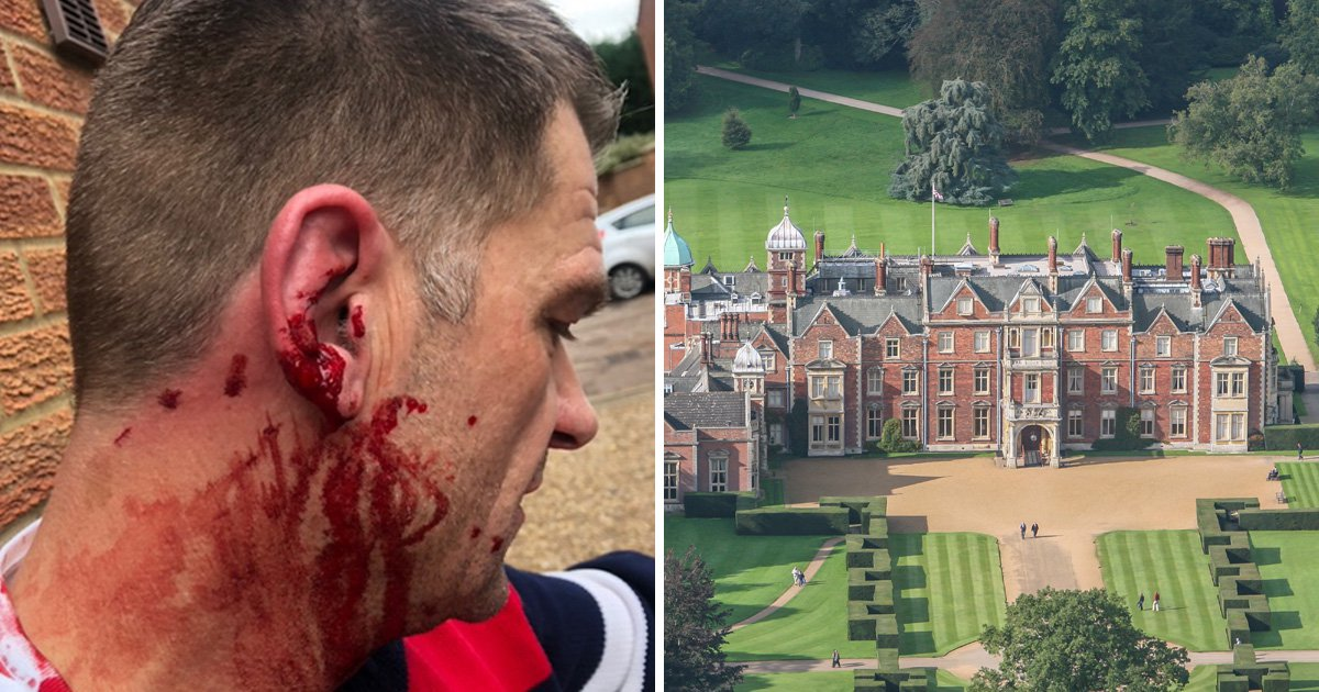 "Royal gamekeeper 'called driver ""peasant"" and hit him with a stick'"