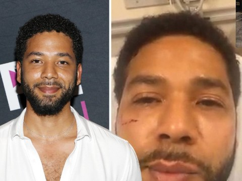 Empire star Jussie Smollett pictured with swollen face and bruises after he's 'brutally attacked' in hate crime