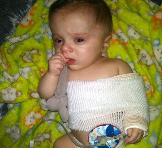 Baby's bones were so fragile he broke both arms and legs ...