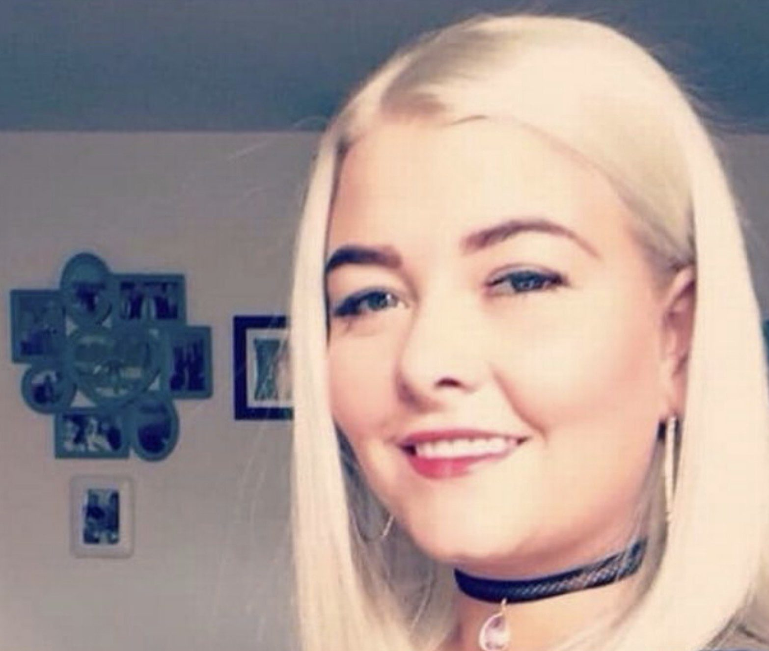A woman had her teeth kicked out by her violent ex-boyfriend because 'she changed her Facebook profile picture'. Lois Ashton has shared pictures of her horrific injuries, after she was kicked so forcibly in the face, three of her front teeth were knocked out and her jaw broken. The 29-year-old, who now has to wear a partial denture, was attacked by ex-boyfriend Andrew McNair after a night out with friends. Credit: Liverpool Echo