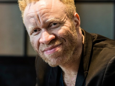 My Label and Me: My albinism is only a big deal to other people
