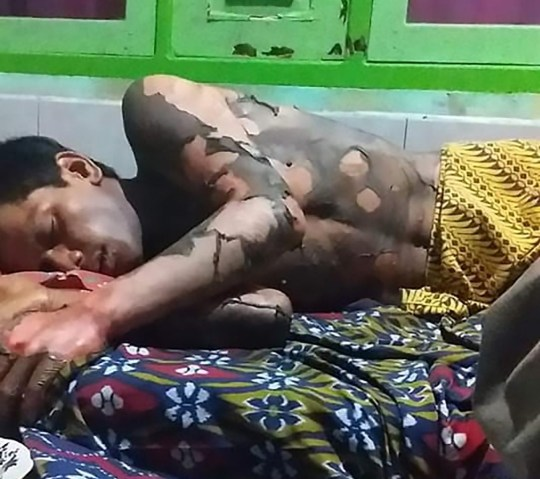 Pic Shows: The man was set alight by his wife after they had a row because he refused to share his phone password; INDONESIA: A wife has been arrested for burning her husband alive after he hit her in an argument over his mobile phone passcode and images show the shocking wounds the man suffered.