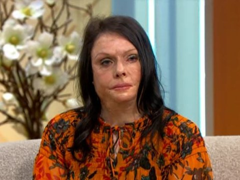 Grandmother with life-threatening burns struggled to leave the house: 'I felt like I was a monster'
