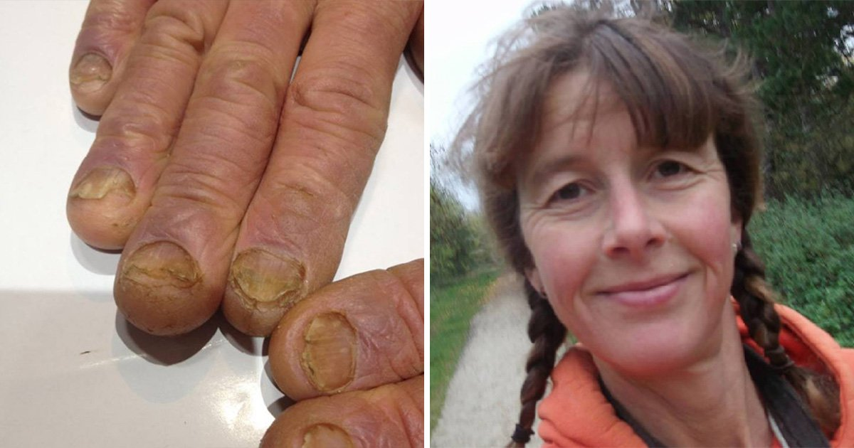 Tailor's fingers 'exploded' because she's so sensitive to the cold